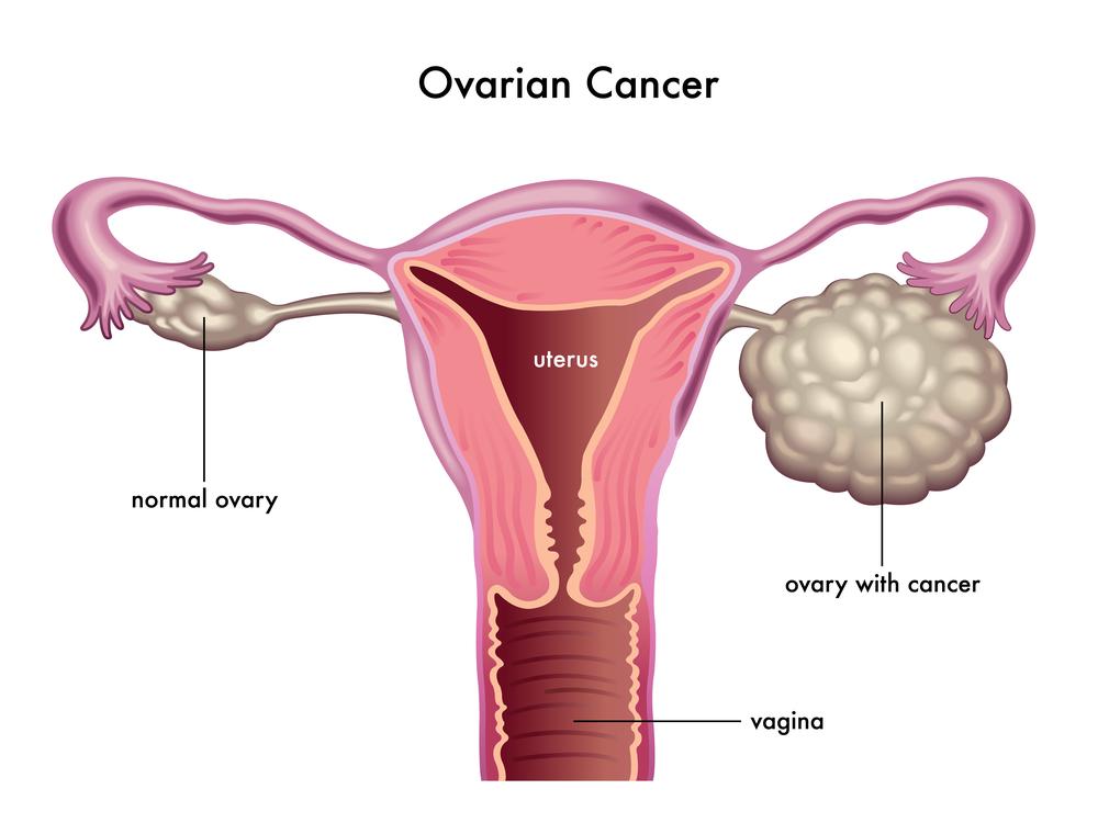 סרטן השחלות. גילוי מאוחר