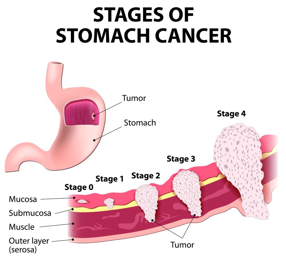 סרטן הקיבה. נפוץ בסין