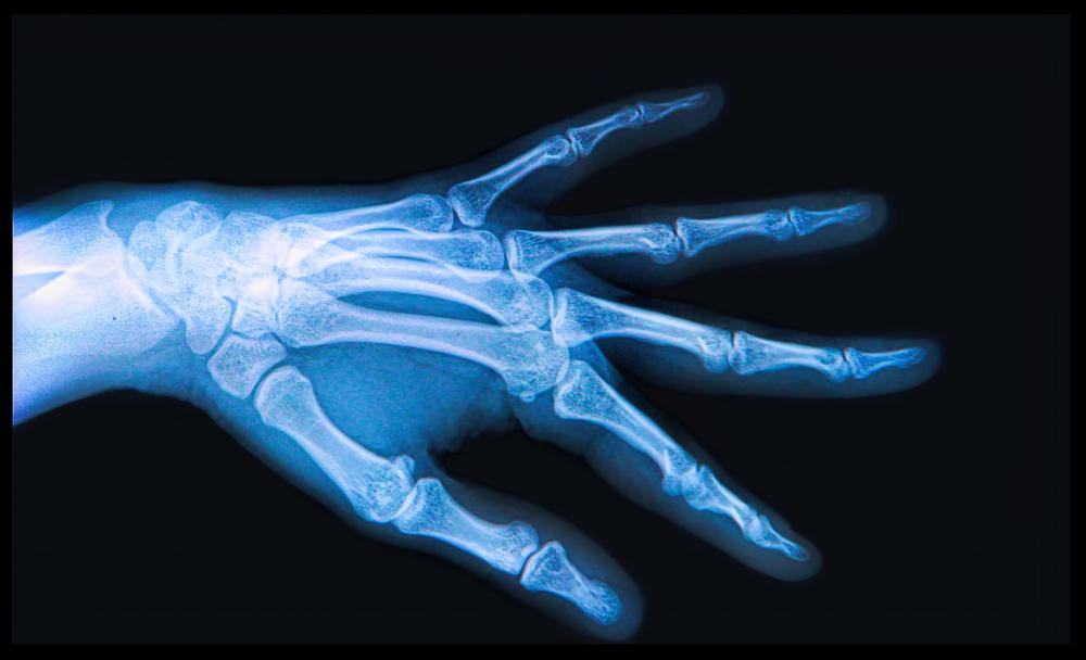 סרטן העצמות